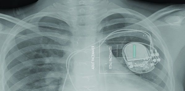 First Fully Implantable Micropacemaker for Foetal Use