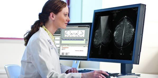 SIIM 2014: Carestream to Participate in Digital Breast Tomosynthesis Session