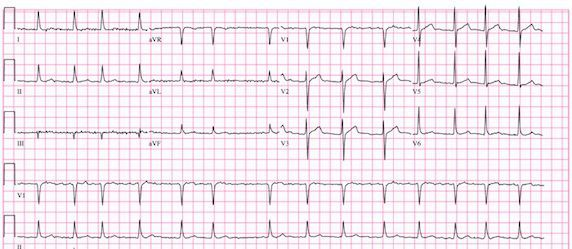 Atrial Fibrillation Seemingly Connected to Heart Attack Risk