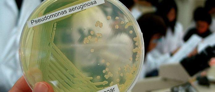 130130-pseudomonas-aeruginosa-denn-flickr-940.jpg