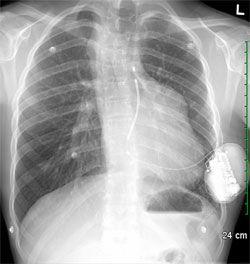 Ottawa_ICD-web.jpg