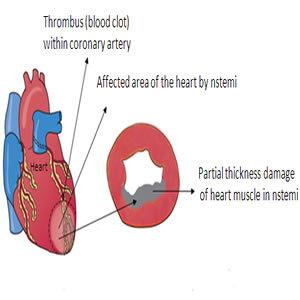 Atrial Fibrillation Increases Risk of NSTEMI