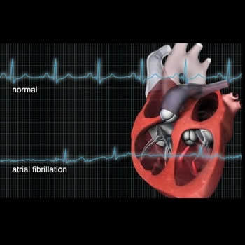 Post-Operative Atrial Fibrillation Increases Risk of Heart Attack, Stroke
