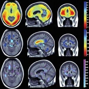 Obesity/physical activity and brain structure