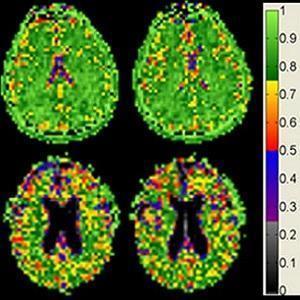 MRI: brain cell density
