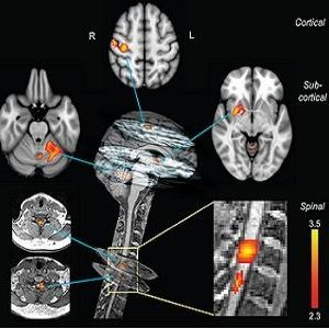 Neural correlates of motor sequence learning