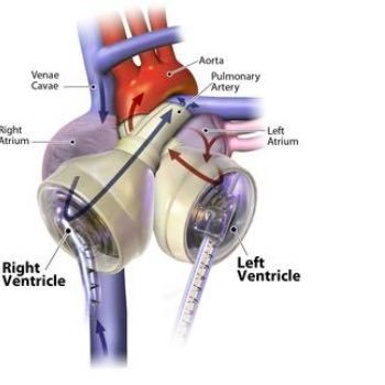 The Syncardia Total Artificial Heart