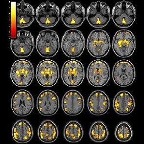 T1-weighted MR imaging exam of the brain
