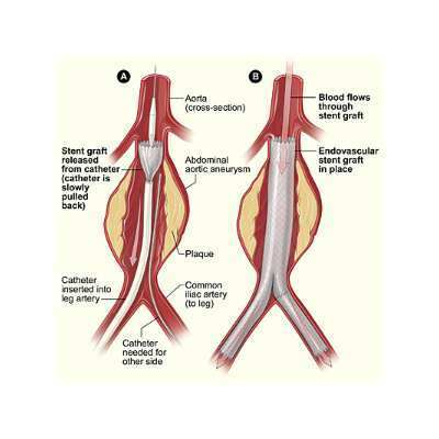 Endovascular repair