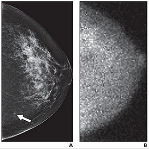 small MBI-occult invasive ductal carcinoma