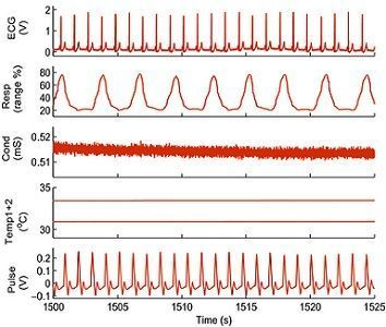 signals recorded during anaesthesia