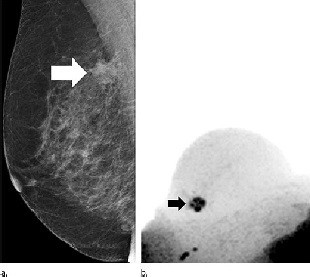 suspicious lesion (arrow) at screening mammography