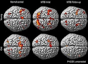 fMRI images of patients with MTBI