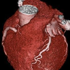 Cardiac CT without CAD