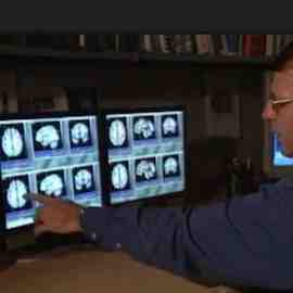 Radiologist reviewing brain MRI scans