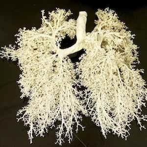Plasticised set of lungs