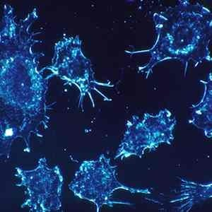 Cancer cells