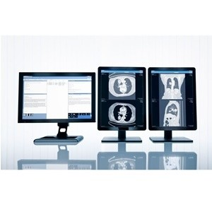 Large London Hospitals Invest in Imaging IT Solution from Sectra