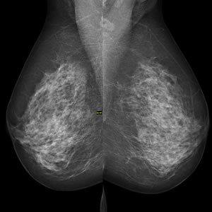 Digital Mammography Helps Predict Heart Disease