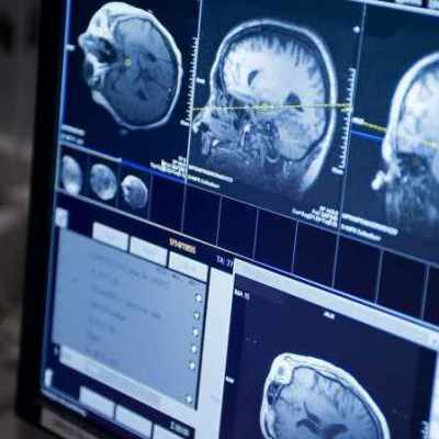 Radiation-Chemo Combo Prolongs Survival in Low-Grade Brain Tumour