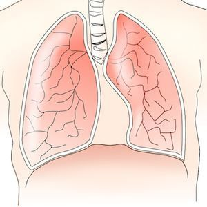 Graphic of lungs and diaphragm, credit Pixabay