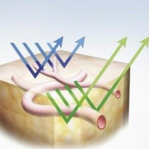 Narrow Band Imaging (source: Olympus Medical Systems)