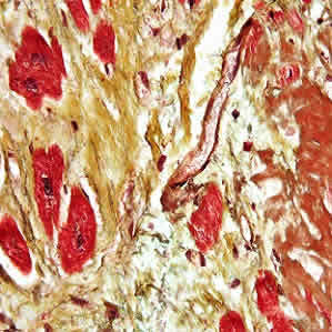 Myocardial Fibrosis Identified as New Therapeutic Target