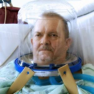 Patient receiving helmet-based ventilation (image credit: University of Chicago Medical Center)