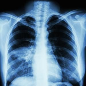 X-ray showing ventilator-associated pneumonia (credit: American Thoracic Society)