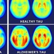 A study using a new PET imaging agent shows that measures of tau protein in the brain more closely track cognitive decline due to Alzheimer's disease compared with long-studied measures of amyloid beta. More red color indicates more tau protein