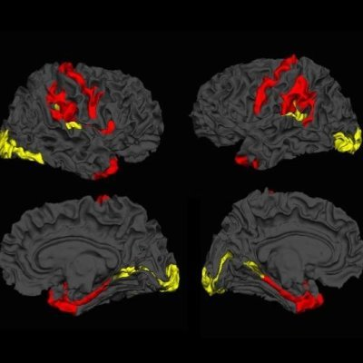 Dynamic cerebral reorganisation in the pathophysiology of schizophrenia: a, MRI-derived cortical thickness study. Credit: Lena Palaniyappan