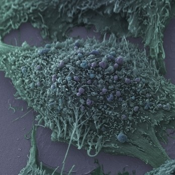 Twice Daily Radiotherapy Halves Treatment Time For Small Cell Lung Cancer