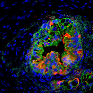 Expression of the stem cell gene Musashi in human pancreatic cancer. Cancer cells are shown in green, Musashi expression in red and blue includes cells within the cancer microenvironment. Image courtesy of Dawn Jaquish, UC San Diego.