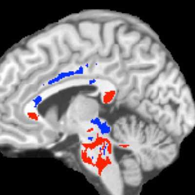 This image of a concussion patient's brain shows low FA areas (red) probably signifying injured white matter, plus high FA areas (blue) perhaps indicating more efficient white-matter connections compensating for concussion damage. A large amount of high F
