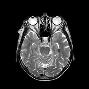 Neuroimaging Findings: Towards More Reliable Analysis