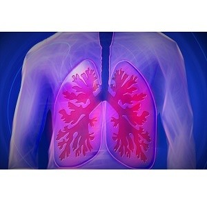 New Model Predicts Lung Cancer Risk in Light and Never Smokers