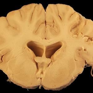 MRI Scans Can Help Spot HIV in the Brain