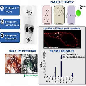 Technology of dual-labeled PSMA-inhibitors for PET/CT imaging and fluorescence-guided intraoperative identification of metastases. This work might help to establish a new treatment regimen for more precise and sensitive pre-, intra- and post-therapeutic d