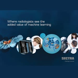New report from Sectra shows where radiologists see the added value of machine learning