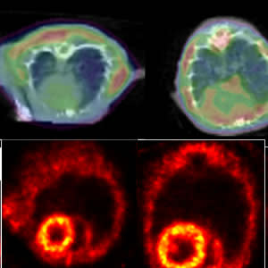 A PET scan detects clumping proteins in rat hearts (top). The enlarged heart (right) is one with heart failure. Other PET scans showing blood flow in the rat hearts (bottom) show that the protein clumps aren't due to circulation problems.