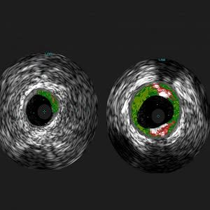 Shown are cross-sectional ultrasound images of coronary arteries from patients enrolled in the study. Plaque buildup (colored areas) in an artery from a patient that lacks sensitivity to red meat allergen (left) is much lower than plaque levels in an arte
