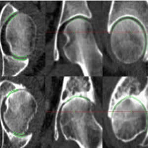 JSM performance at the extremes of disease. Joint space margins are shown in green as seen in axial, coronal and sagittal planes (left to right) at two left hips. (a) An individual with a radiographic K&L grade of 0 (no disease) and minimum joint space wi