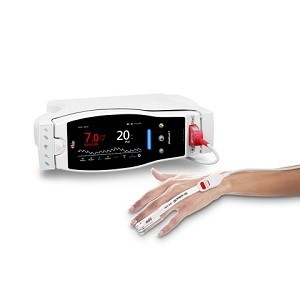 New Study Investigates The Utility Of Masimo PVi® As Part Of Goal-Directed Fluid Management In Patients Undergoing Colorectal Surgery