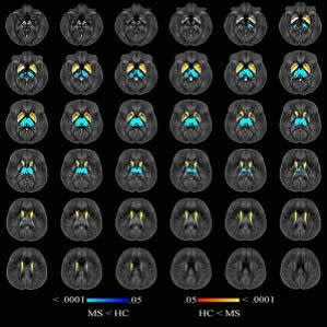 Image shows voxelwise analysis of quantitative susceptibility maps within thalamus, caudate, globus pallidus, and putamen comparing all participants with multiple sclerosis (MS) to healthy control (HC) participants. Areas of higher susceptibility in parti